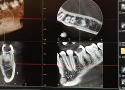Tomografie dentara